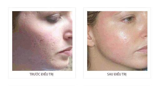 tru71c và sau khi điều trị máy trẻ hóa