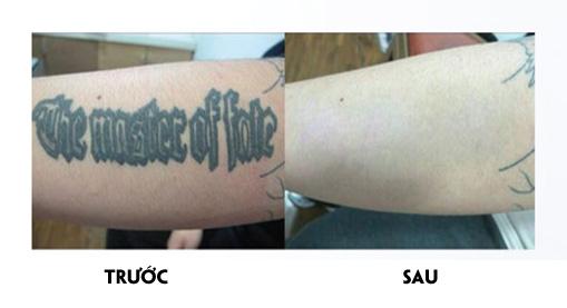 trước và sau khi PicoMaster máy xóa nám