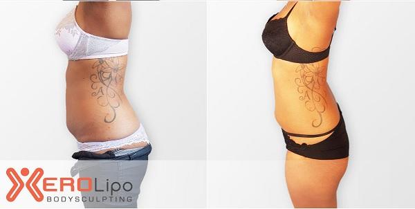 hình trước sau khi điều trị máy giảm béo xerolipo