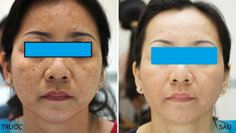 trước và sau khi điều trị bằng máy trị nám polaris