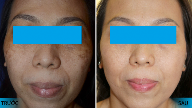 Trước và sau khi điều trị bằng máy điều trị nám da