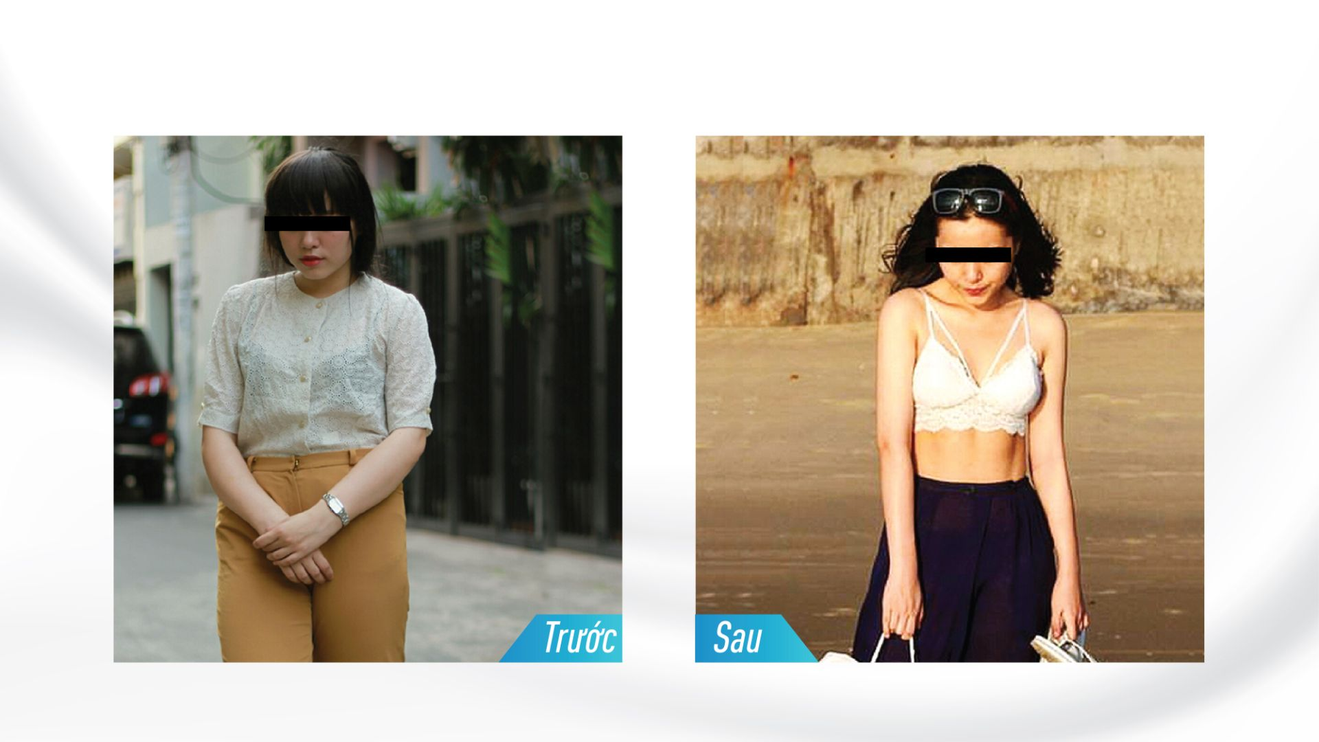 Hình ảnh trước sau khi giảm béo vùng bụng